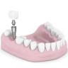 Die vielen Vorteile der Zahnimplantate