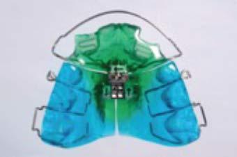 Kieferorthopädie - 5